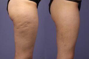 Comment perdre sa cellulite : quelles sont ses causes ?